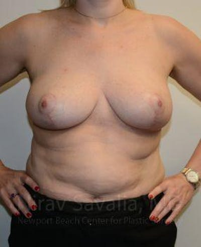 Breast Reduction Gallery - Patient 1655516 - Image 2