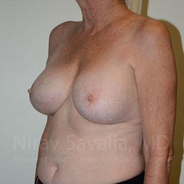 Breast Implant Revision Gallery - Patient 1655513 - Image 8
