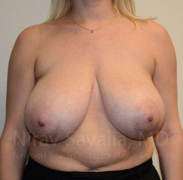 Breast Reduction Gallery - Patient 1655516 - Image 3