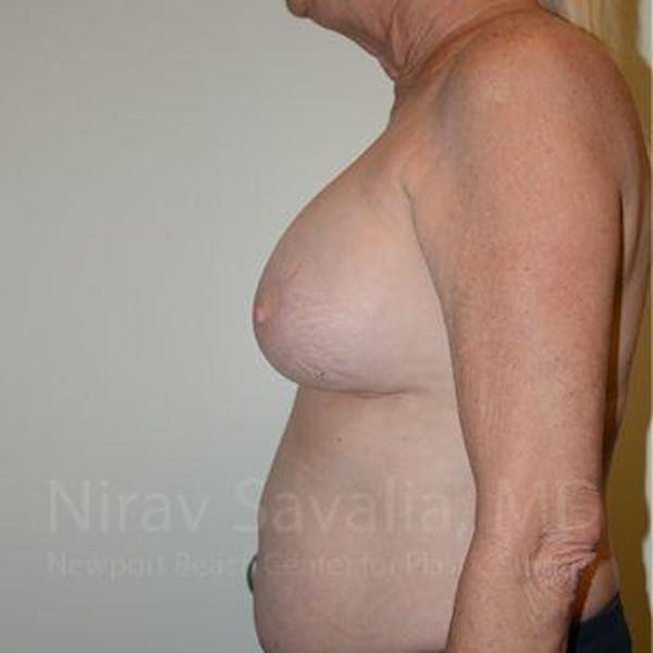 Breast Implant Revision Gallery - Patient 1655513 - Image 9
