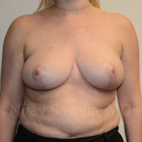 Breast Reduction Gallery - Patient 1655516 - Image 4