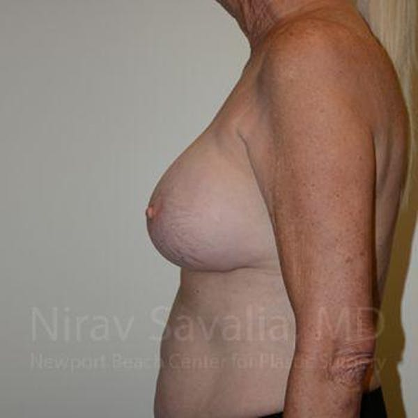Breast Implant Revision Gallery - Patient 1655513 - Image 10