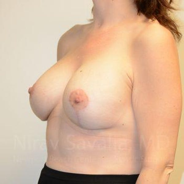 Breast Lift with Implants Gallery - Patient 1655514 - Image 10