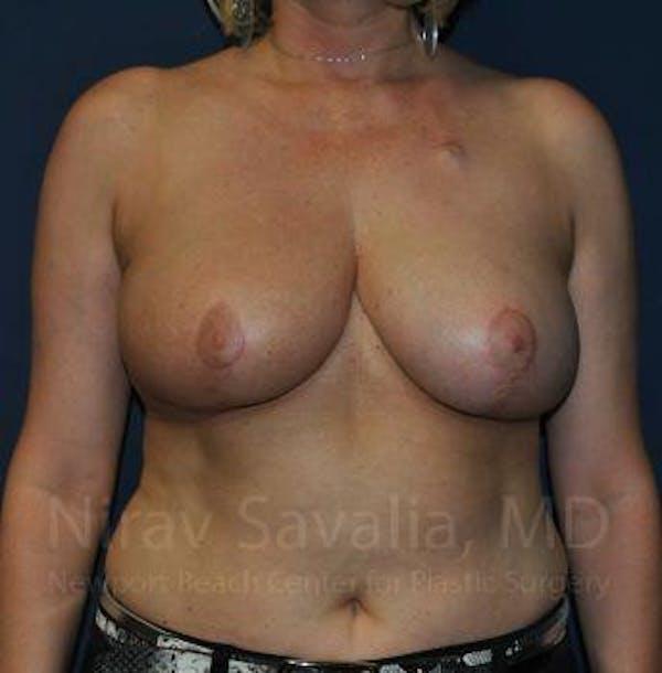 Oncoplastic Reconstruction Gallery - Patient 1655517 - Image 4