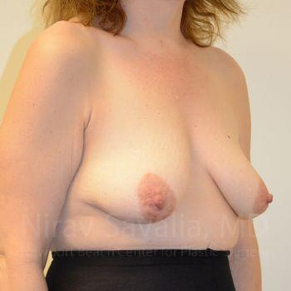 Breast Lift with Implants Gallery - Patient 1655514 - Image 11