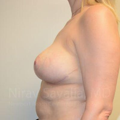 Breast Reduction Gallery - Patient 1655516 - Image 6