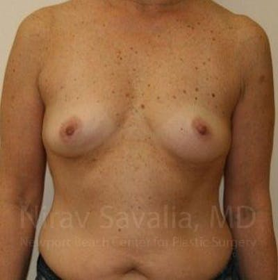 Breast Augmentation Gallery - Patient 1655519 - Image 1