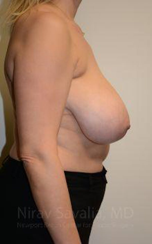 Breast Reduction Gallery - Patient 1655516 - Image 7
