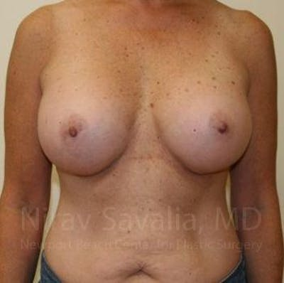 Breast Augmentation Gallery - Patient 1655519 - Image 2