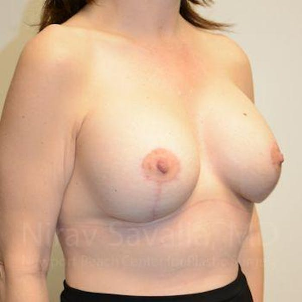 Breast Lift with Implants Gallery - Patient 1655514 - Image 12