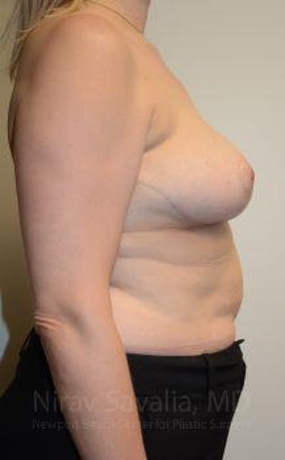 Breast Reduction Gallery - Patient 1655516 - Image 8