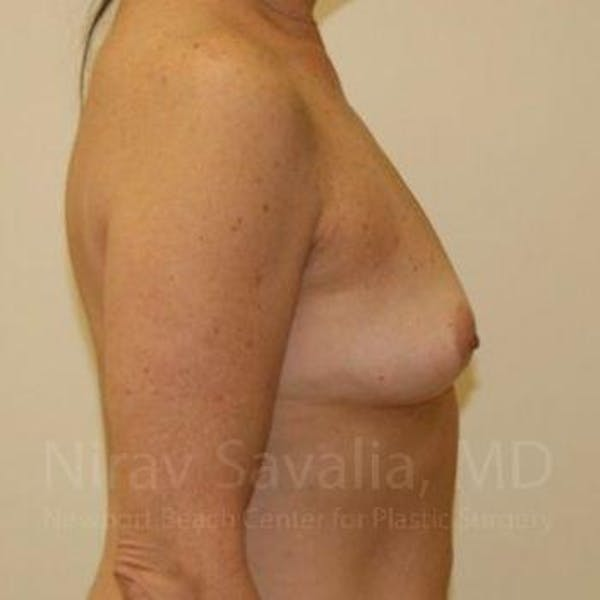 Breast Augmentation Gallery - Patient 1655519 - Image 3