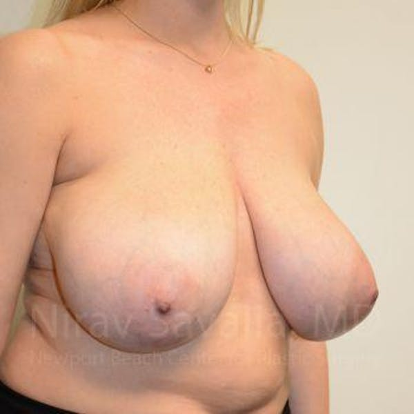 Breast Reduction Gallery - Patient 1655516 - Image 9
