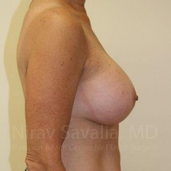 Breast Augmentation Gallery - Patient 1655519 - Image 4