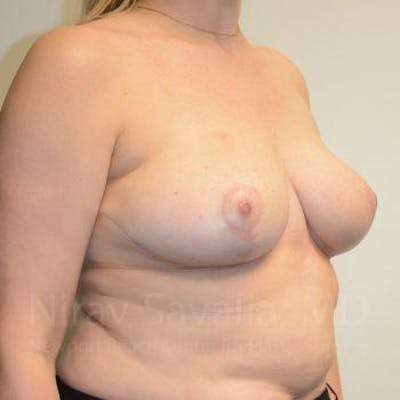 Breast Reduction Gallery - Patient 1655516 - Image 10