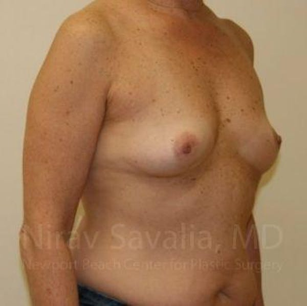 Breast Augmentation Gallery - Patient 1655519 - Image 5