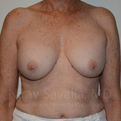 Breast Implant Revision Gallery - Patient 1655520 - Image 1
