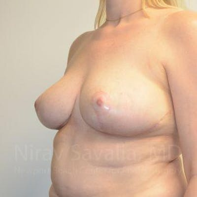 Breast Reduction Gallery - Patient 1655516 - Image 12