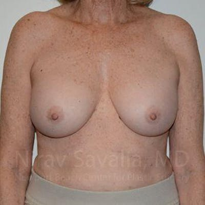 Breast Implant Revision Gallery - Patient 1655520 - Image 2