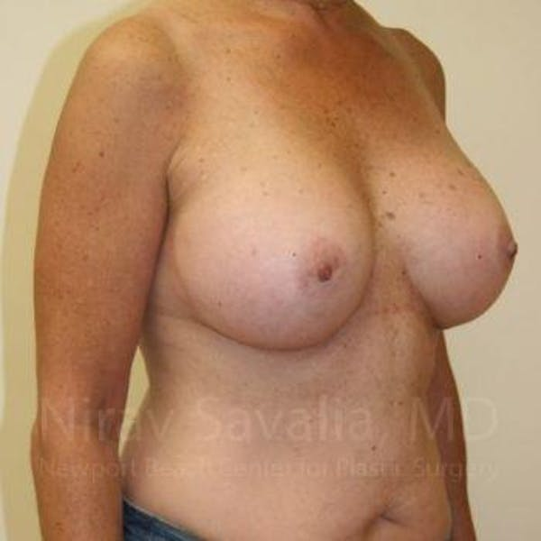 Breast Augmentation Gallery - Patient 1655519 - Image 6