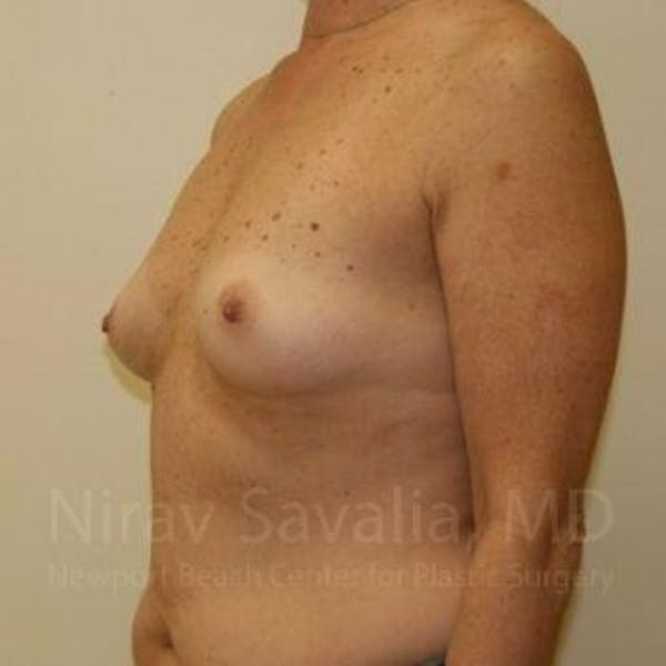 Breast Augmentation Gallery - Patient 1655519 - Image 7