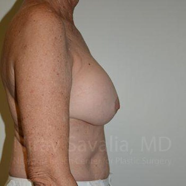 Breast Implant Revision Gallery - Patient 1655520 - Image 3
