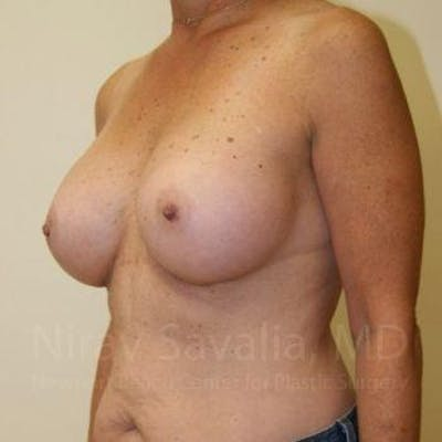 Breast Augmentation Gallery - Patient 1655519 - Image 8