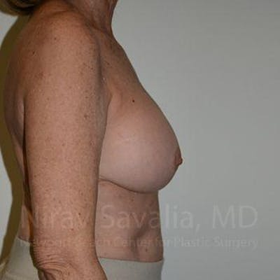 Breast Implant Revision Gallery - Patient 1655520 - Image 4