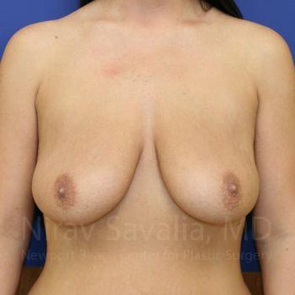 Breast Lift with Implants Gallery - Patient 1655521 - Image 1