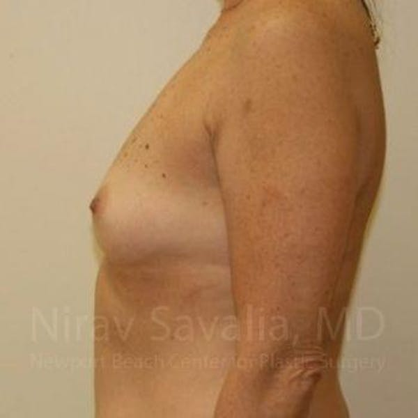 Breast Augmentation Gallery - Patient 1655519 - Image 9