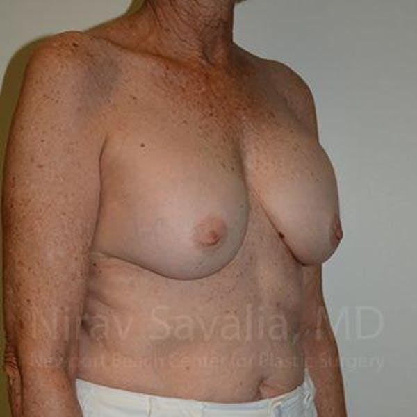 Breast Implant Revision Gallery - Patient 1655520 - Image 5