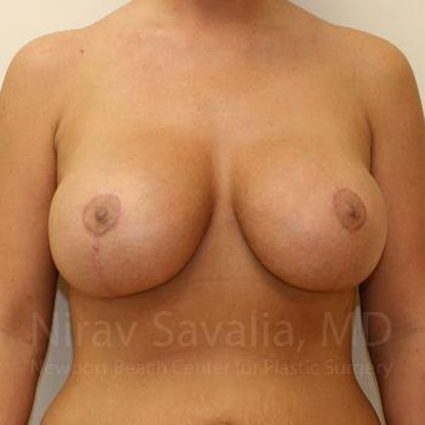 Breast Lift with Implants Gallery - Patient 1655521 - Image 2
