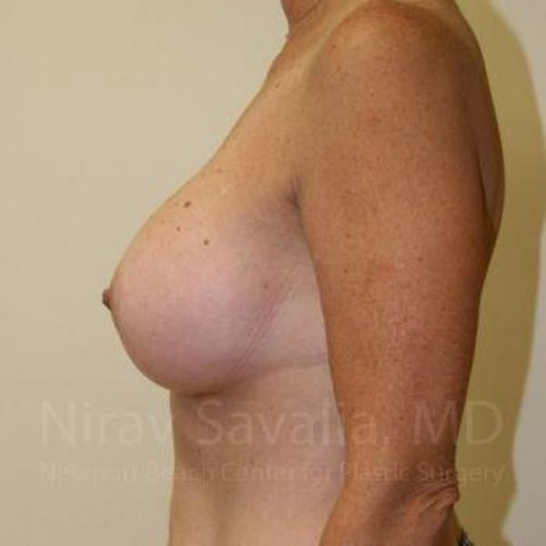 Breast Augmentation Gallery - Patient 1655519 - Image 10