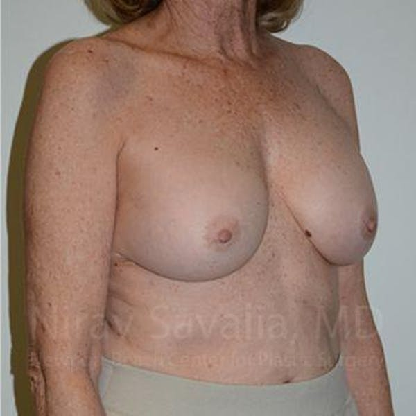 Breast Implant Revision Gallery - Patient 1655520 - Image 6