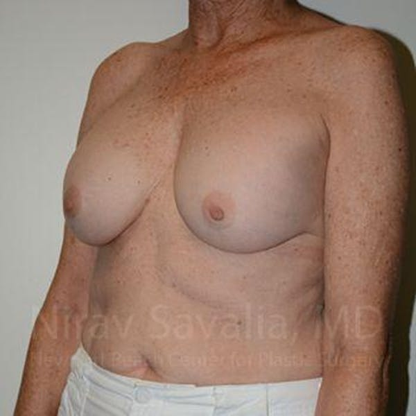 Breast Implant Revision Gallery - Patient 1655520 - Image 7