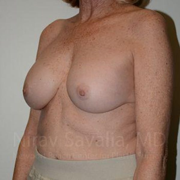 Breast Implant Revision Gallery - Patient 1655520 - Image 8