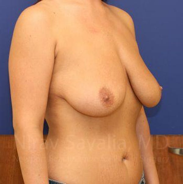Breast Lift with Implants Gallery - Patient 1655521 - Image 7