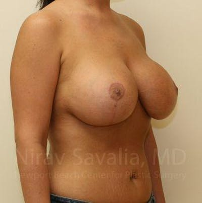 Breast Lift with Implants Gallery - Patient 1655521 - Image 8