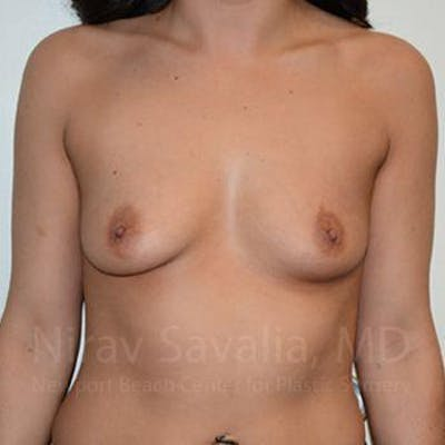 Breast Augmentation Gallery - Patient 1655525 - Image 1