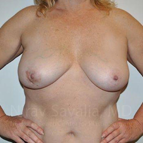Oncoplastic Reconstruction Gallery - Patient 1655523 - Image 3