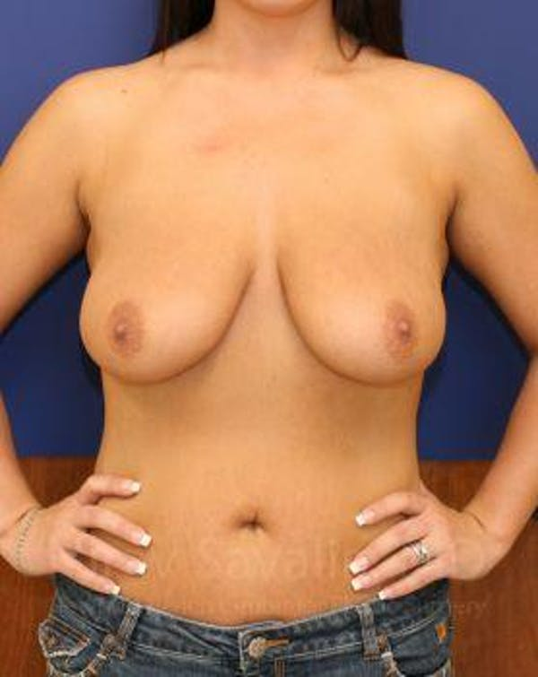 Breast Lift with Implants Gallery - Patient 1655521 - Image 11