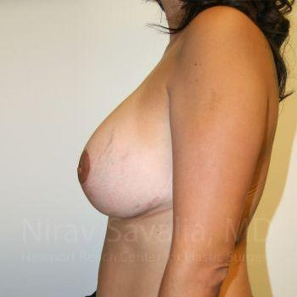 Breast Implant Revision Gallery - Patient 1655524 - Image 2