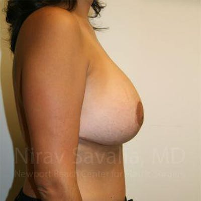 Breast Implant Revision Gallery - Patient 1655524 - Image 4