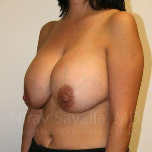 Breast Implant Revision Gallery - Patient 1655524 - Image 5