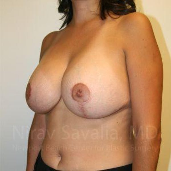 Breast Implant Revision Gallery - Patient 1655524 - Image 6