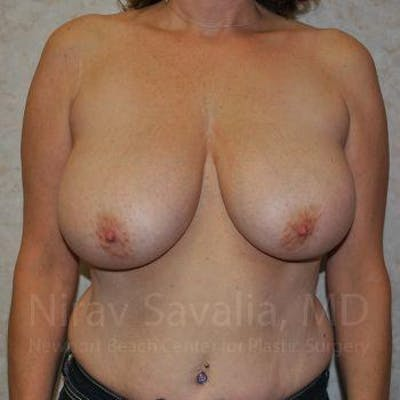 Breast Lift with Implants Gallery - Patient 1655526 - Image 1