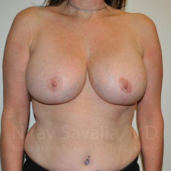 Breast Lift with Implants Gallery - Patient 1655526 - Image 2