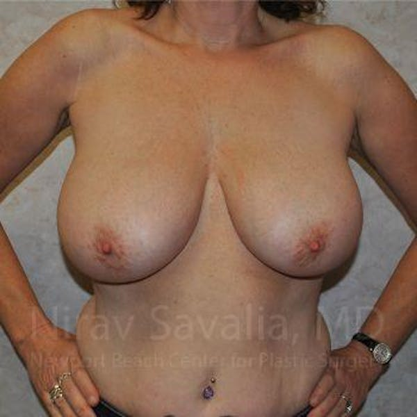 Breast Lift with Implants Gallery - Patient 1655526 - Image 3