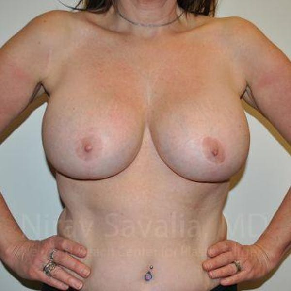 Breast Lift with Implants Gallery - Patient 1655526 - Image 4