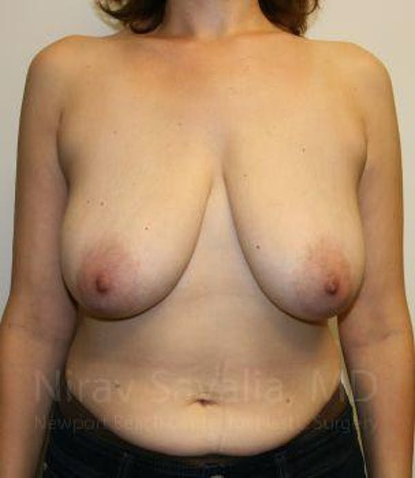 Breast Reduction Gallery - Patient 1655527 - Image 1